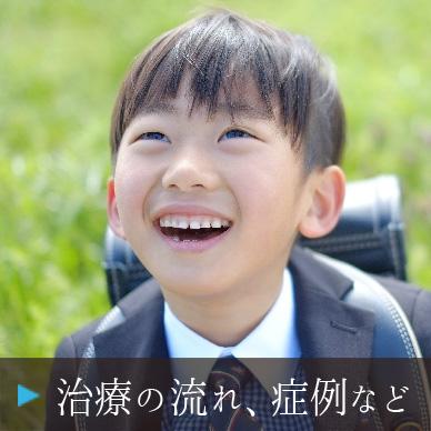 小児プレ矯正の治療の流れ、症例など